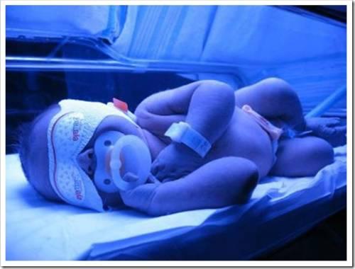 Фототерапевтические лампы для новорожденных: показания и противопоказания