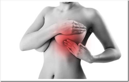 факторы риска развития мастопатии