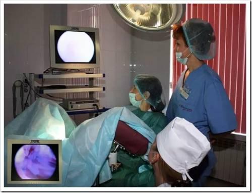 Заболевания, при которых назначается гистероскопия