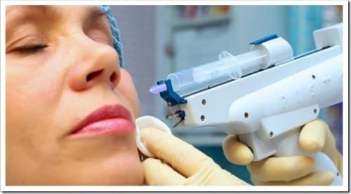 Главные отличия между мезотерапией и биоревитализацией
