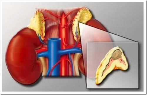 Классическая симптоматика при опухоли надпочечников