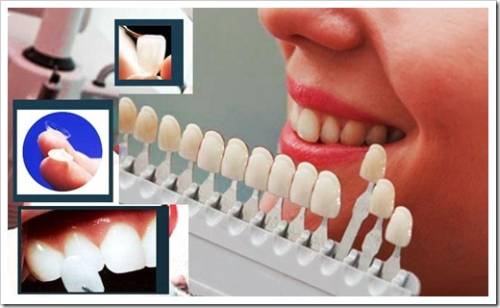 Изменяется уход за зубами