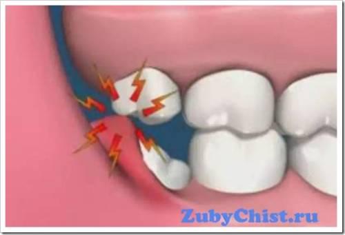 Как осуществляется реабилитация после удаления зуба мудрости