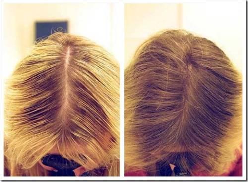 Терапия для сохранения волос
