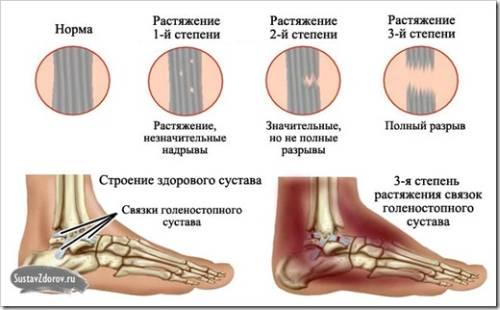Повреждения связок голеностопа