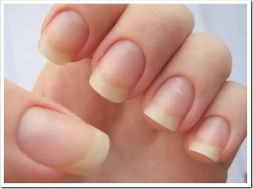 Выравнивание ногтей при помощи смолы и ванночек