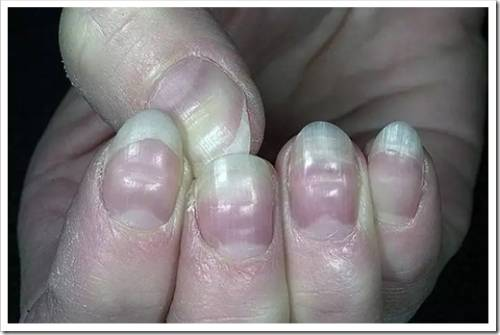 Причины, из-за которых ногтевая пластина «идёт волной»