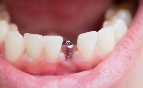 Как вставляют зубы, если нет корня