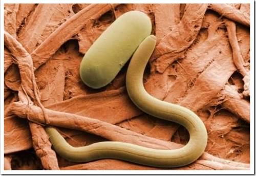 нематоды: характеристика круглых червей