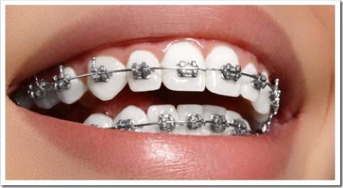 Необходимость постоянного давления на зуб для его выпрямления