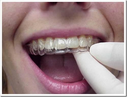 Выпрямление зубов без брекет-систем