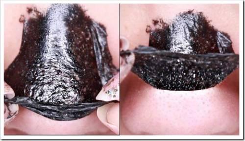 Чистка кожи лица при помощи «резины»