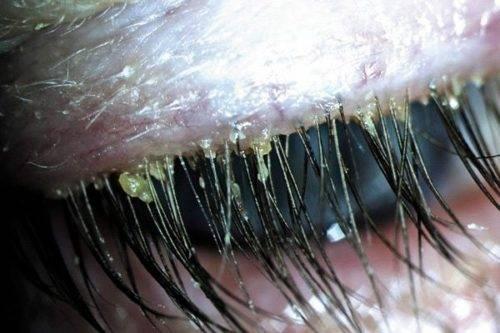 Как лечить демодекоз на глазах