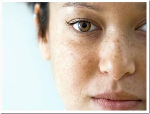 Общие рекомендации по лечению меланодермии