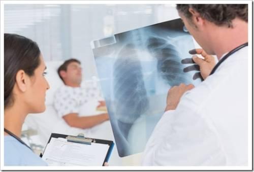 Лечение воспаления легких