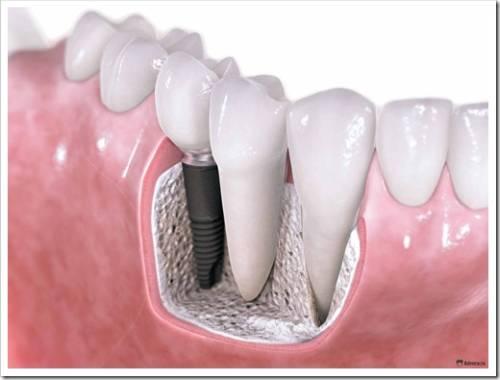 Стоит ли удалять здоровые зубы?