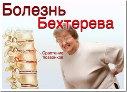 Лечение болезни Бехтерева