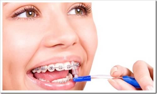 Необходимо располагать целым арсеналом для чистки зубов