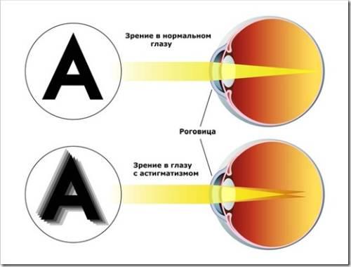 Как понять, что присутствуют проблемы со зрением?
