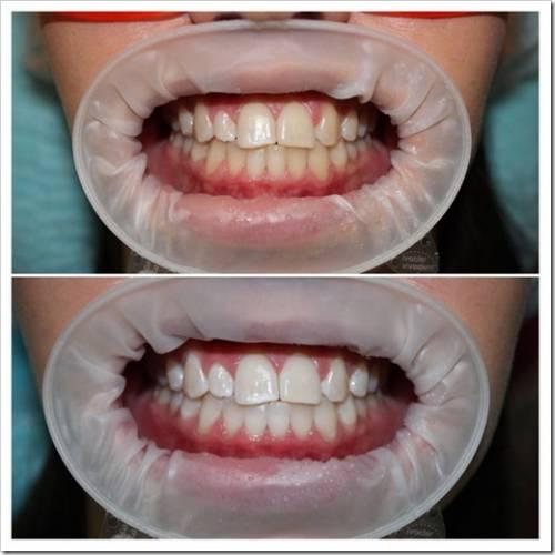 Стоит ли отбеливать зубы самостоятельно?