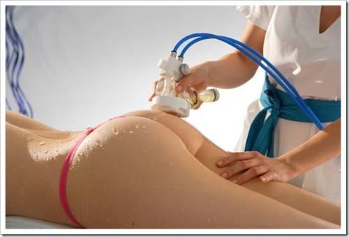 Вакуумно-роликовый массаж по телу