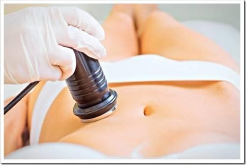 Ультразвуковая кавитация: безвредный метод улучшения пропорций тела