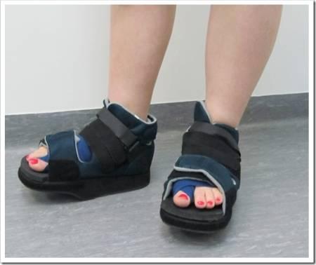 Особенности послеоперационной обуви