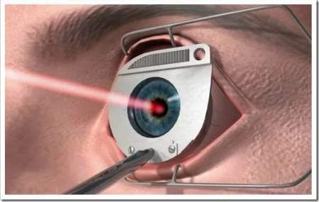 Популярные методы коррекции зрения